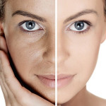 PIGMENTATION TREATMENT PACKAGE