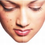 ACNE AND PIMPLES TREATMENT PACKAGE
